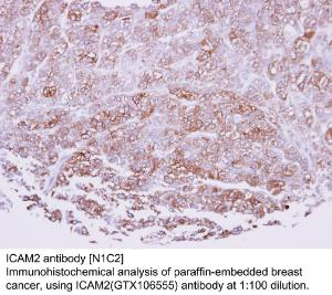 Anti-PEN2 Rabbit Polyclonal Antibody