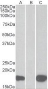 Anti-PHLDA3 Goat Polyclonal Antibody