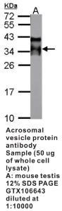 Anti-PYY Rabbit Polyclonal Antibody