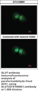 Anti-SLU7 Rabbit Polyclonal Antibody