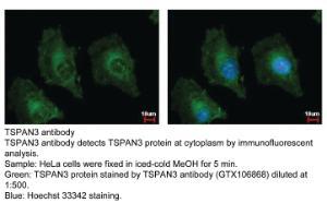 Anti-CABP7 Rabbit Polyclonal Antibody