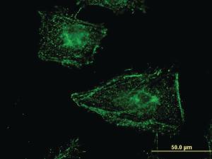Anti-CLINT1 Mouse Monoclonal Antibody [clone: 1000000]