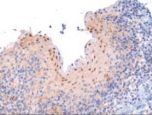 Western blot analysis of RANBP9 in paraffin embedded human tonsil using RANBP9 Antibody at 3 ug/mL.