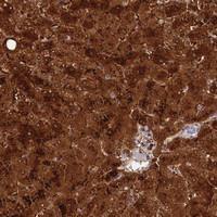 Anti-TTC36 Rabbit Polyclonal Antibody
