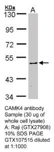 Anti-SPRED3 Rabbit Polyclonal Antibody