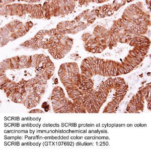 Anti-SCRIB Rabbit Polyclonal Antibody