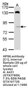 Anti-HPS8 Rabbit Polyclonal Antibody