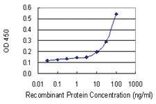 Anti-BCL2L11 Mouse Monoclonal Antibody [clone: 2F10]