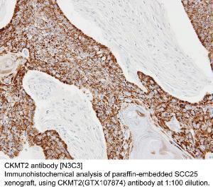Anti-AURKA Rabbit Polyclonal Antibody