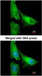 Anti-AGAP1 Rabbit Polyclonal Antibody