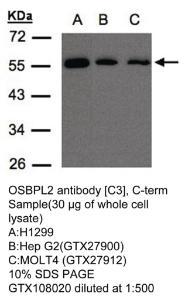 Anti-ANP32E Rabbit Polyclonal Antibody