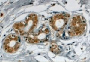 Immunohistochemistry staining of SNX5 in human breast using SNX5 Antibody at 4 ug/mL. Steamed antigen retrieval with citrate buffer pH 6, HRP-staining.