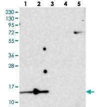 Anti-SF3B6 Rabbit Polyclonal Antibody