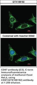 Anti-ADGRE5 Rabbit Polyclonal Antibody