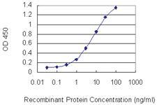 Anti-CHAF1A Mouse Monoclonal Antibody [clone: 1C2]