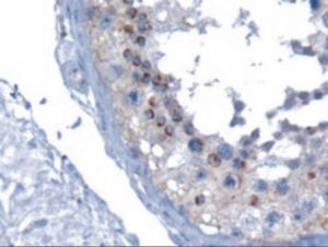 VPS28 staining of paraffin embedded human testis using VPS28 Antibody at 10 ug/mL.