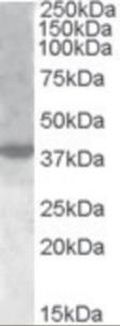 Western blot analysis of XBP1 in nuclear HeLa lysate (35 ug protein in RIPA buffer) using XBP1 Antibody at 1 ug/mL.
