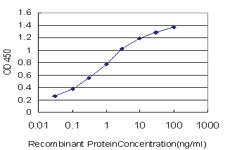 Anti-SCN11A Mouse Monoclonal Antibody [clone: 60]