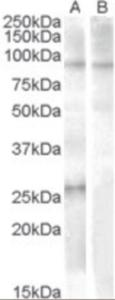 Western blot analysis of APOBEC2 in human heart lysate (35 ug protein in RIPA buffer) with (B) and without (A) blocking with the immunizing peptide. Primary incubation was 1 hour. using APOBEC2 Antibody at 1 ug/mL.