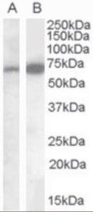 Western blot analysis of CADM4 in human cerebellum lysate (35 ug protein in RIPA buffer) using CADM4 Antibody at 0.1 ug/mL.