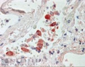 Immunohistochemistry staining of CES1 in human lung using CES1 Antibody at 2.5 ug/mL.