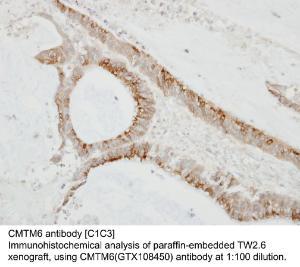 Anti-RPC8 Rabbit Polyclonal Antibody