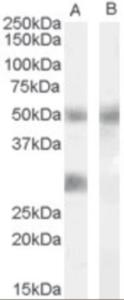 Western blot analysis of IGFBP3 in human breast Tumor lysate (35 ug protein in RIPA buffer) with (B) and without (A) blocking with the immunizing peptide. Primary incubation was 1 hour. using IGFBP3 Antibody at 0.02 ug/mL.