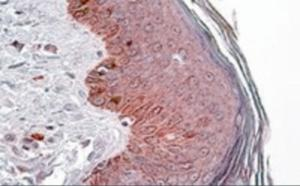 Immunohistochemistry staining of PNPLA3 in human skin using PNPLA3 Antibody at 3.8 ug/mL. Steamed antigen retrieval with citrate buffer pH 6, AP-staining.
