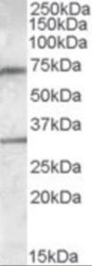 Western blot analysis of Endothelial Lipase in human liver lysate (35 ug protein in RIPA buffer) using Endothelial Lipase Antibody at 0.3 ug/mL.