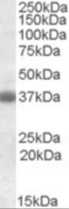 Western blot analysis of Clusterin in rat brain lysate (35 ug protein in RIPA buffer) using Clusterin Antibody at 1 ug/mL.