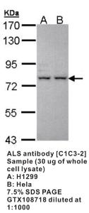 Anti-IGFALS Rabbit Polyclonal Antibody