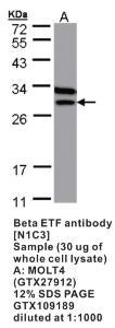 Anti-ETFB Rabbit Polyclonal Antibody