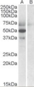 Western blot analysis of Apolipoprotein L4 in human placenta lysate (35 ug protein in RIPA buffer) with (B) and without (A) blocking with the immunizing peptide using Apolipoprotein L4 Antibody at 0.5 ug/mL.