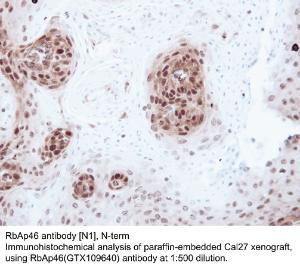 Anti-ZNF600 Rabbit Polyclonal Antibody