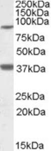 Western blot analysis of LASS1 in human frontal cortex lysate (35 ug protein in RIPA buffer) using LASS1 Antibody at 1 ug/mL.