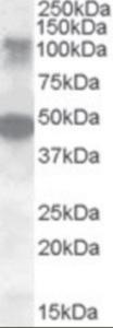 Western blot analysis of LIP1 in human ovary lysate (35 ug protein in RIPA buffer) using LIP1 Antibody at 0.5 ug/mL.