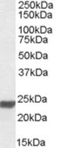 Western blot analysis of HMGB3 in human lung lysate (35 ug protein in RIPA buffer) using HMGB3 Antibody at 0.01 ug/mL.