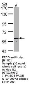 Anti-FTCD Rabbit Polyclonal Antibody