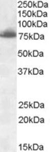 Western blot analysis of DLL1 in rat heart lysate (35 ug protein in RIPA buffer) using DLL1 Antibody at 0.3 ug/mL.