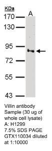 Anti-N4BP1 Rabbit Polyclonal Antibody