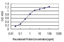 Anti-CYP46A1 Mouse Monoclonal Antibody [clone: 1A11]
