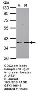 Anti-CDK1 Rabbit Polyclonal Antibody