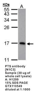 Anti-PTS Rabbit Polyclonal Antibody