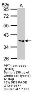 Anti-PPT1 Rabbit Polyclonal Antibody