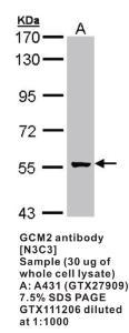 Anti-GCM2 Rabbit Polyclonal Antibody