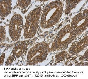 Anti-CCL20 Rabbit Polyclonal Antibody