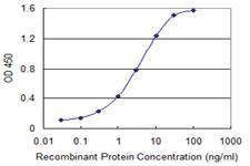 Anti-ABCC5 Mouse Monoclonal Antibody [clone: 1B12]