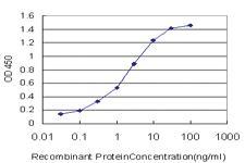 Anti-STK38 Mouse Monoclonal Antibody [clone: 3A5]