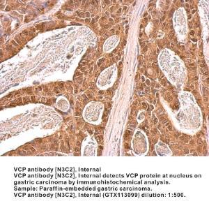 Anti-VCP Rabbit Polyclonal Antibody