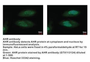 Anti-AHR Rabbit Polyclonal Antibody